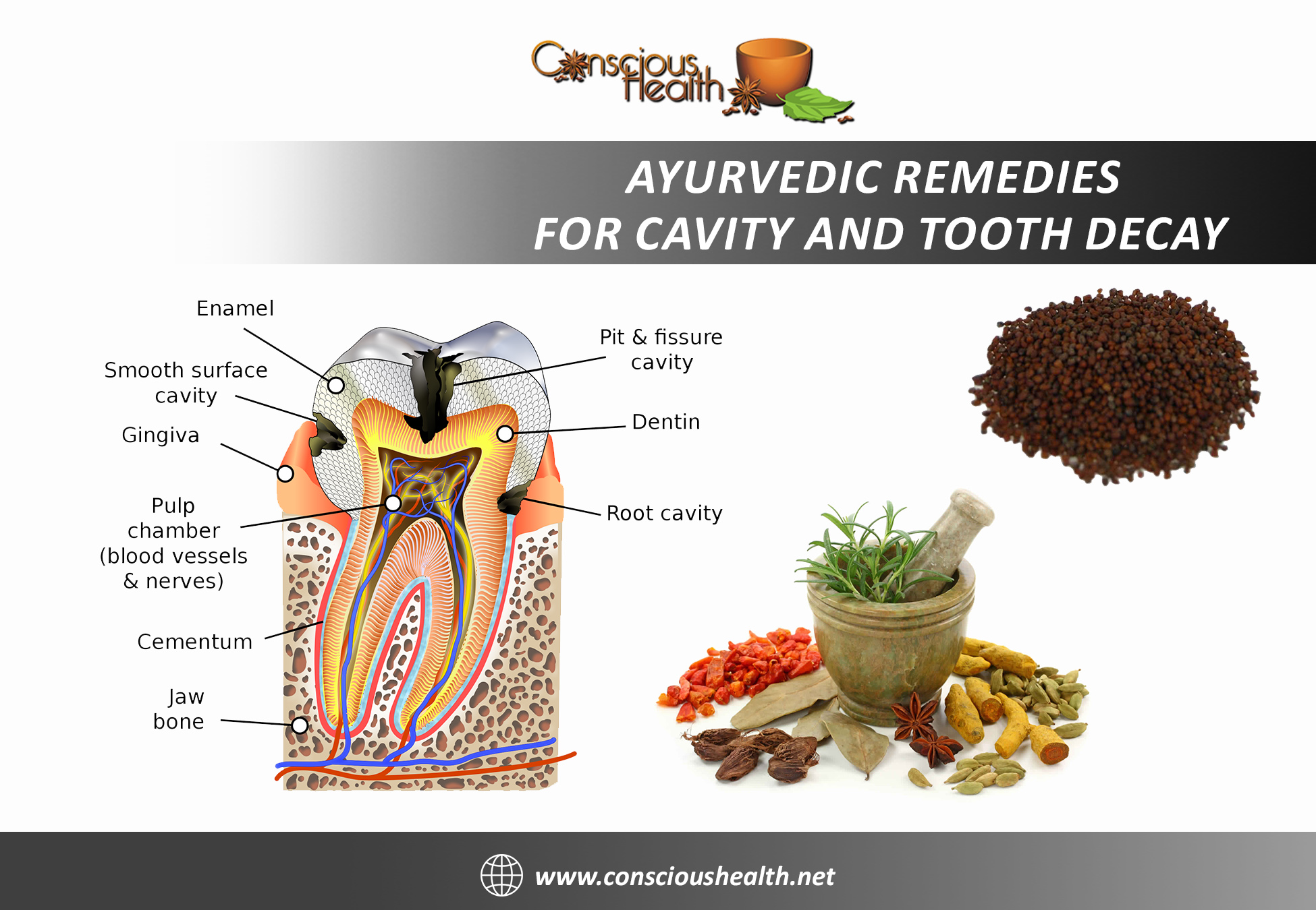 Ayurvedic Remedies For Cavity And Tooth Decay Conscious Health